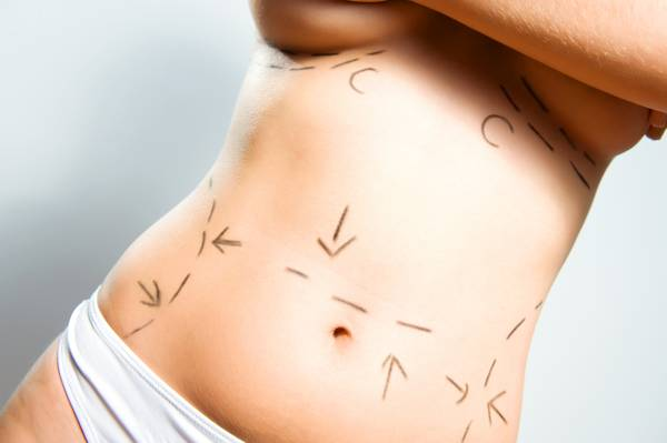What Is A Tummy Tuck? [Ask A Plastic Surgeon]